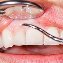 Periodontal Plastic Surgery