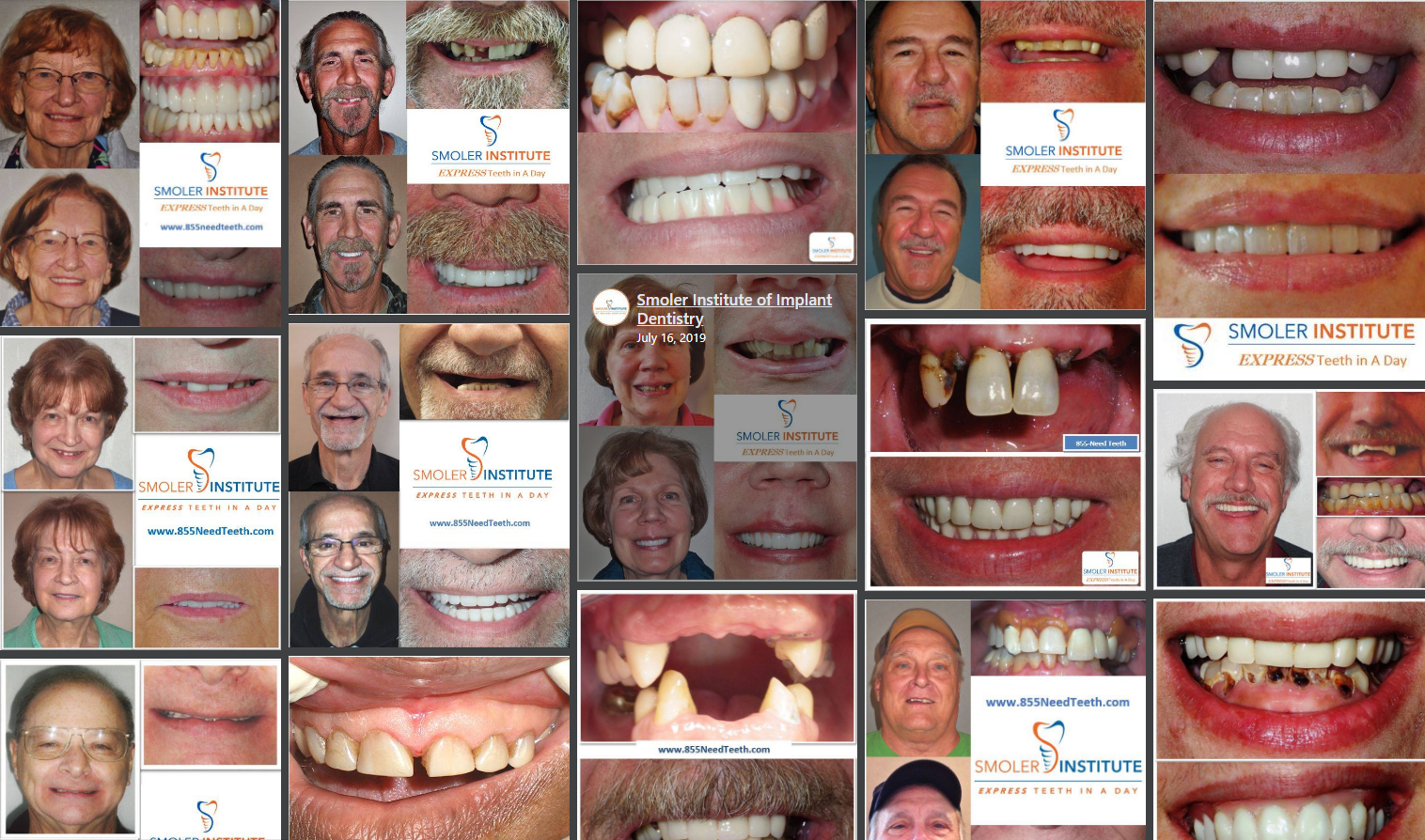 Dental Implant Before & After Photos